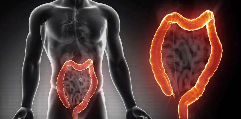 Colorectal Cancer Treatment in Singapore