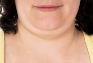 Chin and Neck Fat