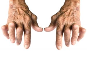 An old woman's hands suffering from Rheumatoid Arthritis