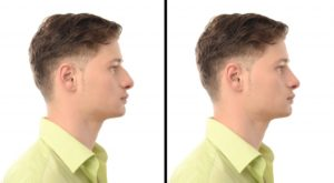 Young Man with Nose Job