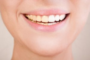 Discolored Teeth And Teeth Whitening