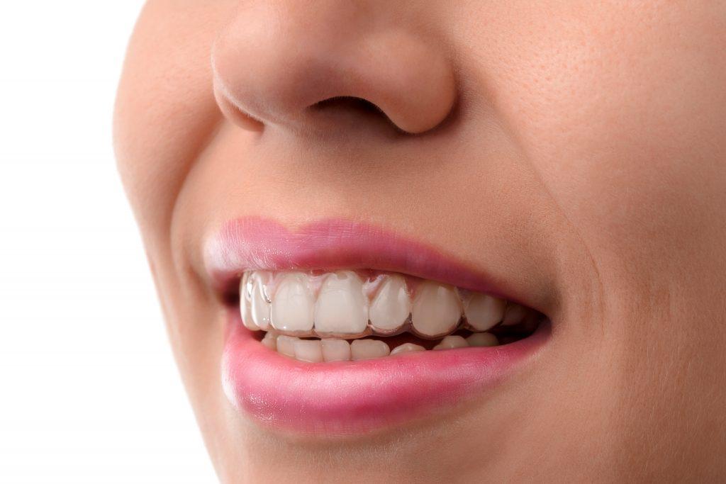 wearing clear braces