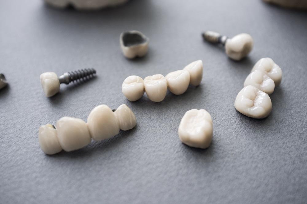 Teeth Implants