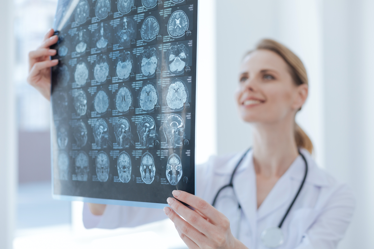 woman looking at xray of brain