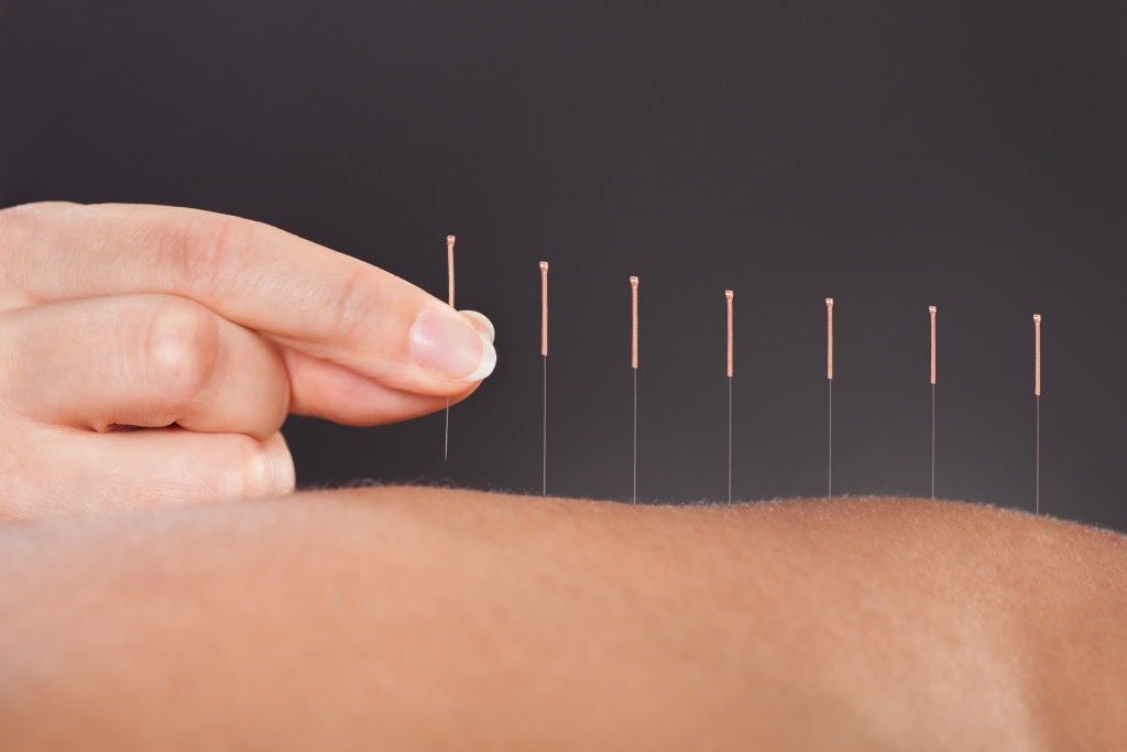 a row of needles placed on top of skin